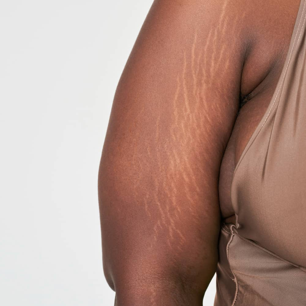 Get Rid Of Stretch Marks on Abdomen, Thighs, Buttocks, Breast, and Arms