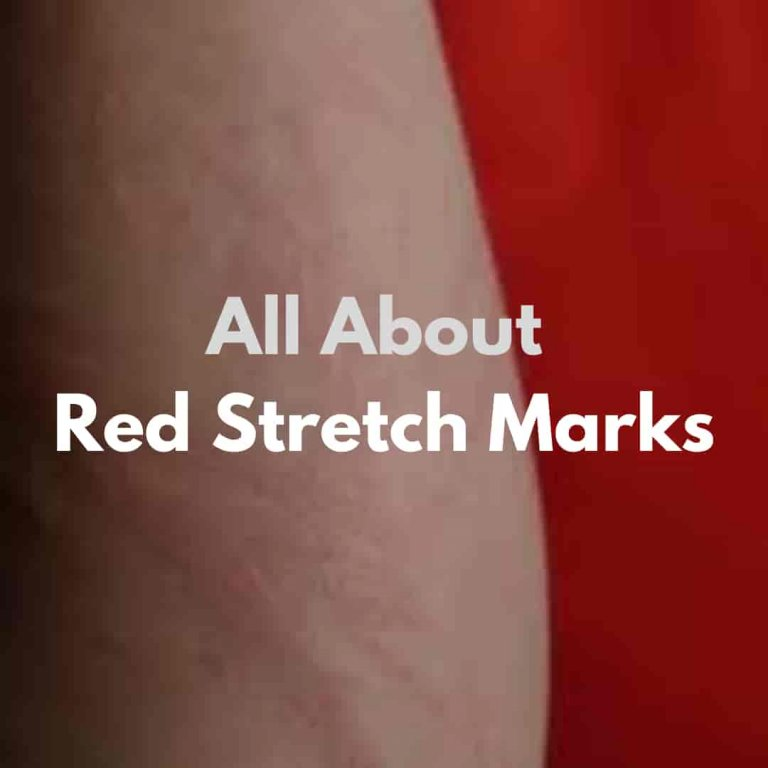 Quick And Easy Fix For Red Stretch Marks – Everything About Red Stretch Marks 2021