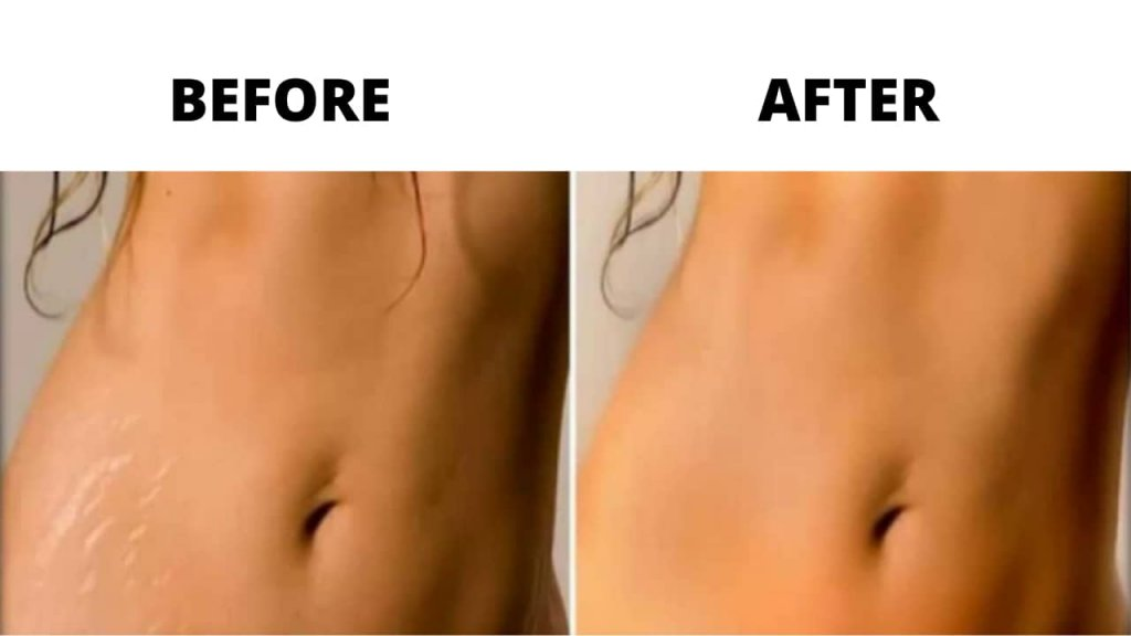Revitol Stretch Marks Cream Before and after