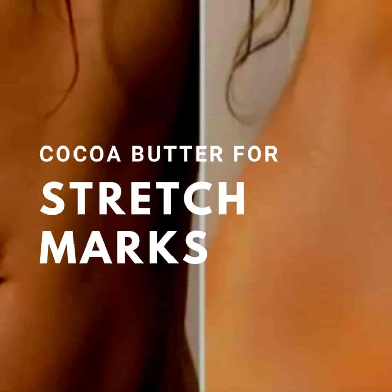 How Effective Is Cocoa Butter for Stretch Marks? 2021