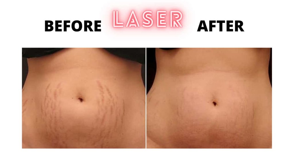 Laser treatment of stretch marks cream before and after