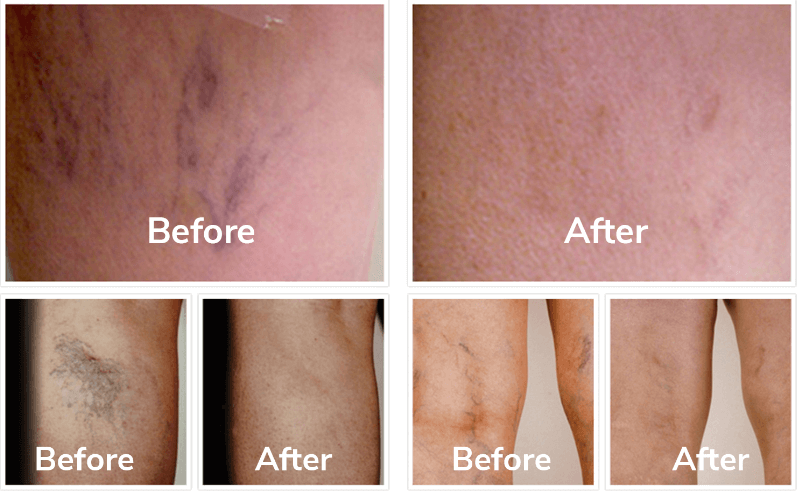 Venorex Cream Before and after effects