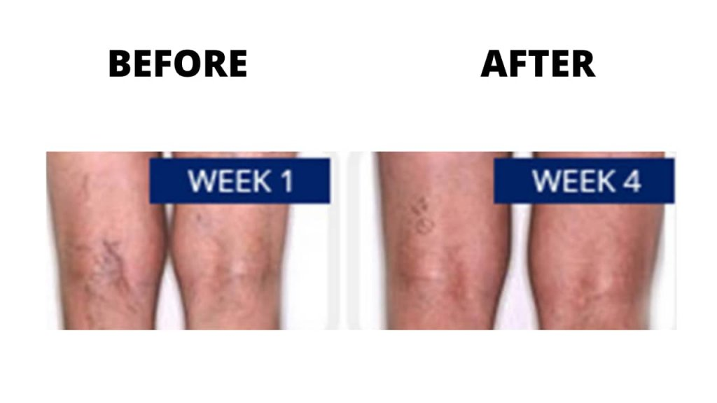 Venorex cream Before and After