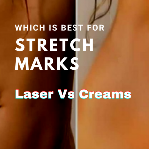 Which is best for stretch marks laser or creams