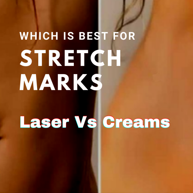 Laser Surgery Vs Stretch Marks Creams: Let's Find Which Is Best For You 2021