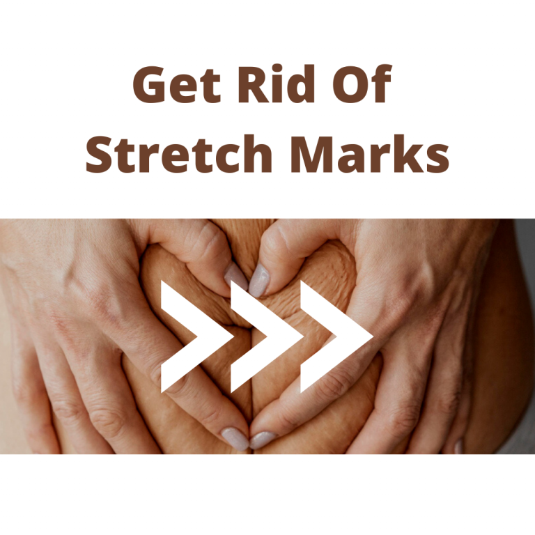 Secrets of Stretch Marks Prevention: Best Ways Explained! 2021
