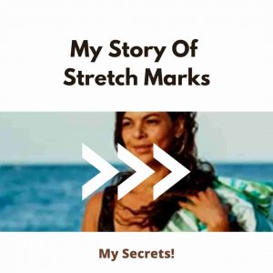 Get Rid Of Stretch marks Like ME