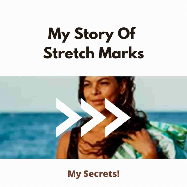 Get Rid of Your Stretch Marks Like Me: Unbelievable My Stretch Marks Story