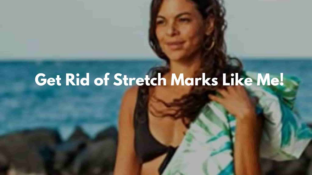 Get Rid of Your Stretch marks