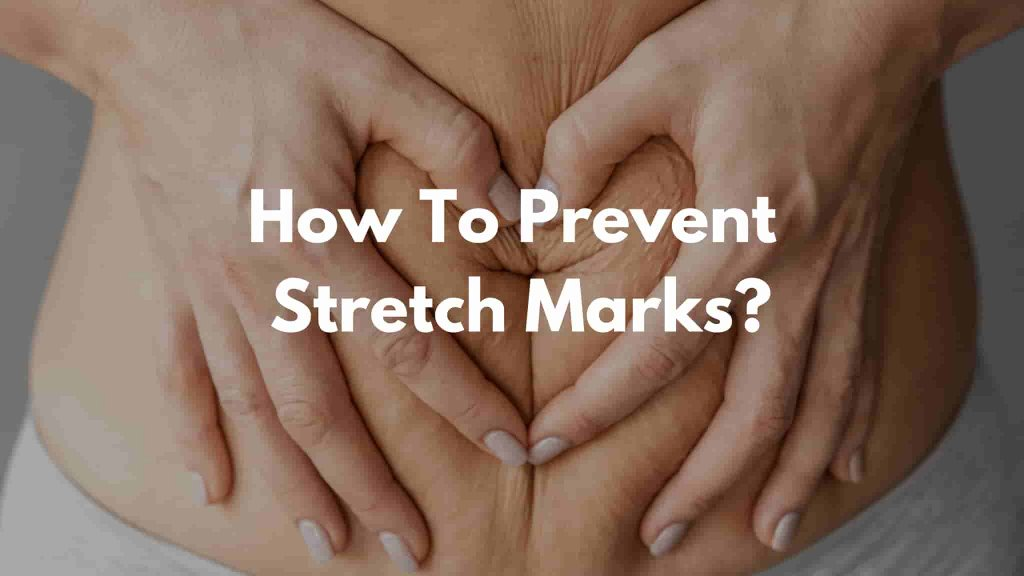 Stretch Marks Prevention During Pregnancy