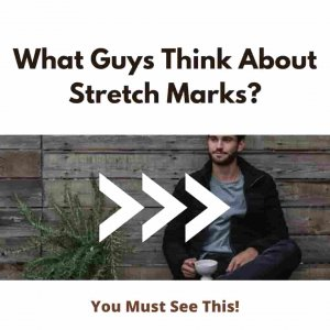 What Guys Think About Stretch Marks Really