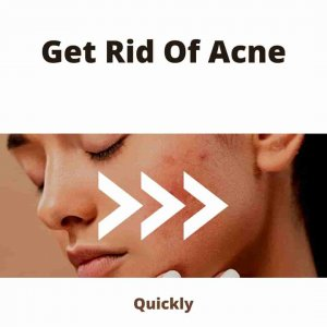 how To Get Rid Of Acne (1)