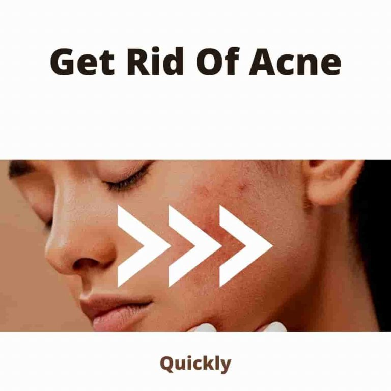 How To Get Rid Of Acne: Fast and Proven Ways Remove Acne 2021